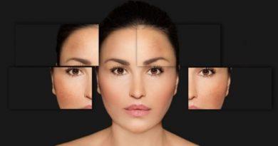 Top 5 Creams That Can Help Reduce Dark Spots